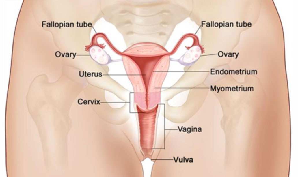 Gynaecological cancer diagram